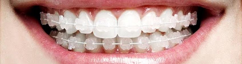 ortodontia-smile